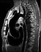 西陣病院、胸部のMRI