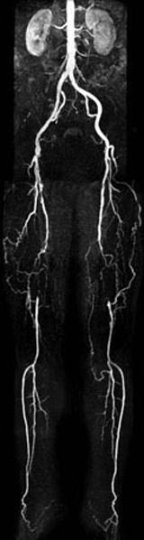 西陣病院、下肢のMRアンギオグラフィー