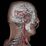 西陣病院、頭部の3次元CT