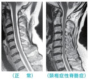 神経 症 症 性 頚椎 根