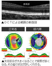 西陣病院、眼科用超音波診断装置